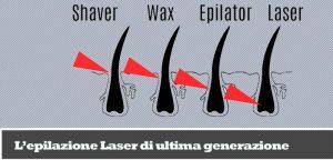 epilazione-laser-approfondita_800x384